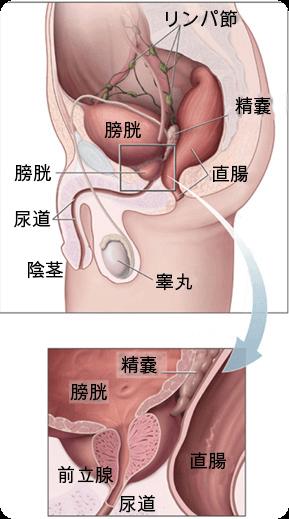 男性の前立腺